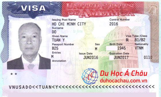 Visa du lịch Mỹ bác Đỗ Tuấn Y – Trung tâm Á Châu